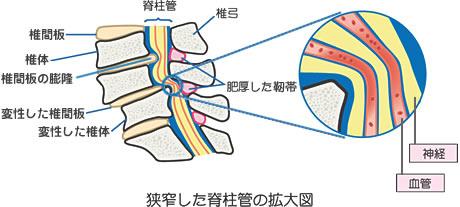 脊柱管狭窄症の説明