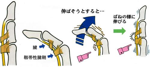 ばね指の仕組み