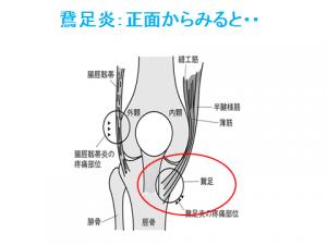 膝周辺の筋肉の痛み