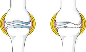膝の軟骨の炎症