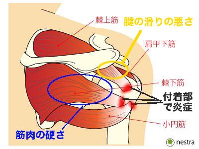 腱板損傷の原因
