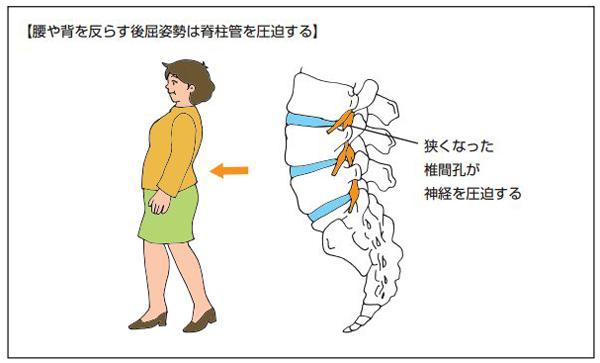 脊柱管狭窄症の反り腰