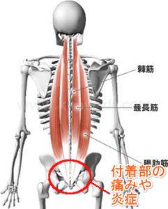 筋肉の付け根の痛みや炎症